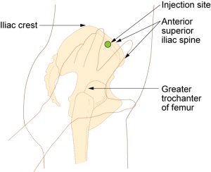 ventrogluteal intramuscular injection
