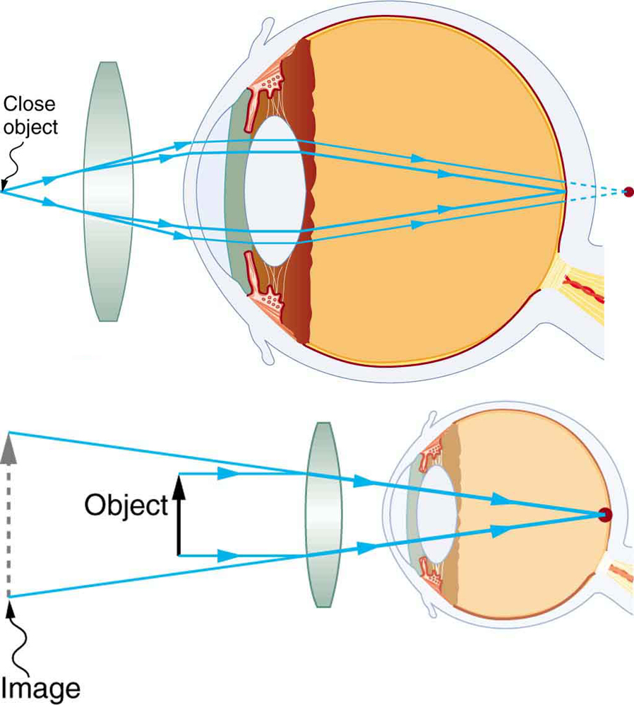 Two illustrations of a cross-sectional view of an eye are shown. In the upper part of the figure, a converging lens is placed in front of the eye structure and a close object before it. A ray diagram showing the rays from the object are striking the lens; converging a bit and entering the eyes; converging again through the eye lens and forming an image at the retina, and another set of rays converge behind the retina. The lower part of the figure shows a virtual image, an object, a converging lens, and the internal structure of an eye. Parallel rays from the object are entering the eyes and converging at a point on the retina. An image larger than the object image is formed behind the object on the same side of the lens.