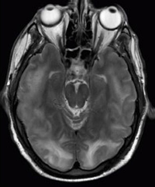 M R I scan of a brain with specific tumors.
