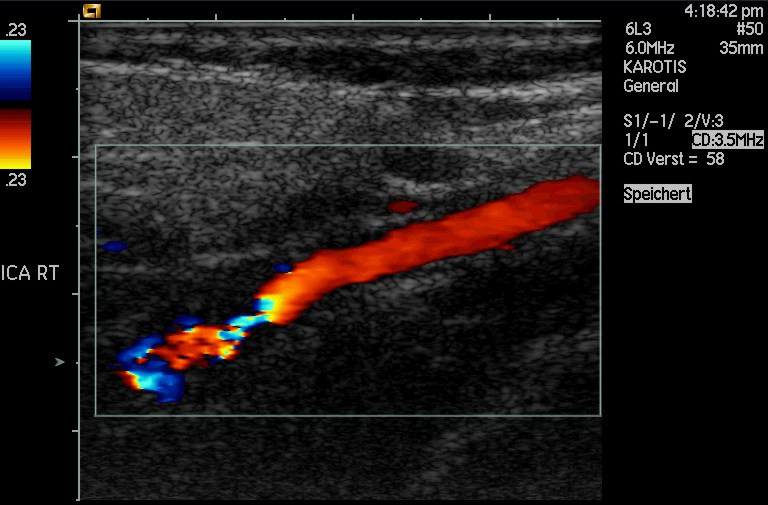 Doppler-shifted ultrasonic image of a partially occluded artery.