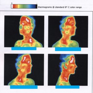 This figure consists of four different infrared thermographs of a person's head and neck, taken when the person's head was positioned at four different angles. The person's face and neck are mostly red and orange, with patches of white, green, and yellow. The red and white colors correspond to hot areas. The person's hair ranges in color from green to light blue to dark blue. The blue color corresponds to cold areas.