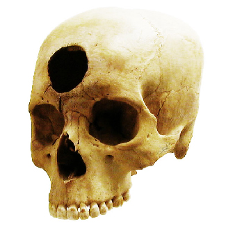 """Some of our ancestors, across the world and over the centuries, believed that trephination—the practice of making a hole in the skull, as shown here—allowed evil spirits to leave the body, thus curing mental illness and other disorders. (credit: """"taiproject""""/Flickr)"""