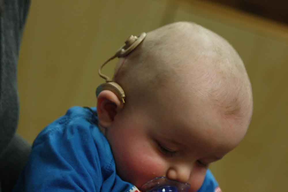 Photograph of a baby with a device attached on its lower part of the head, just above the right ear.